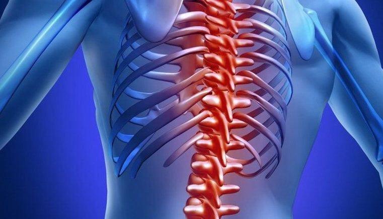 Кифоз грудного отдела позвоночника: симптомы и лечение