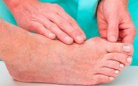Лечение подагры на ноге