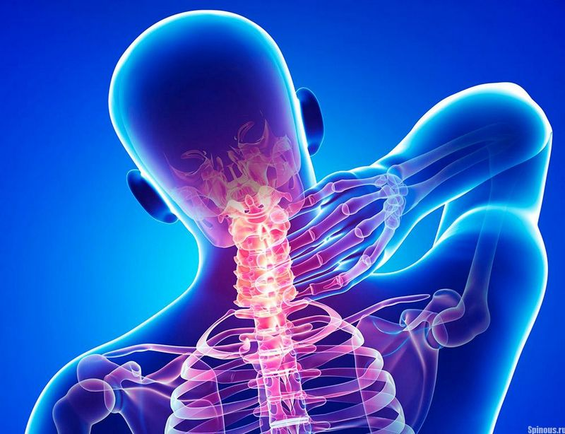 Лордоз шейного отдела: симптомы и лечение