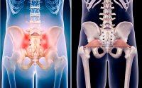 Перелом костей таза — от симптомов до лечения