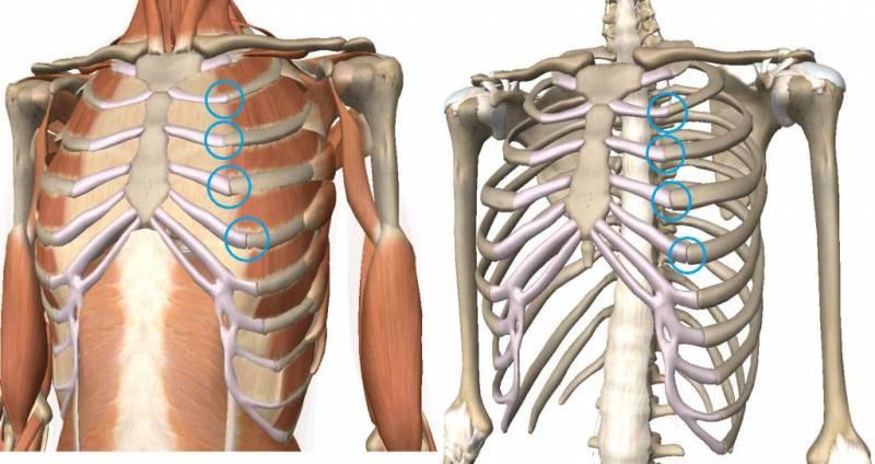 Перелом ребра: лечение в домашних условиях