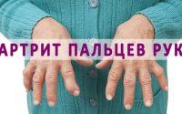 Первые симптомы при ревматоидном артрите пальцев рук