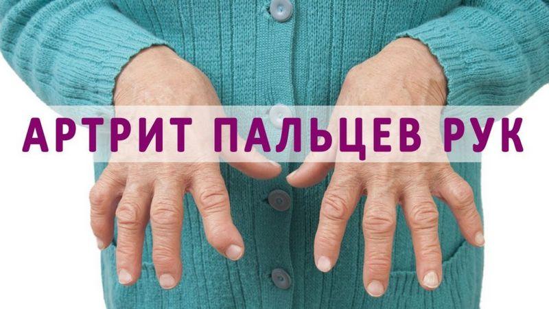 Ревматоидный артрит пальцев рук и его первые симптомы