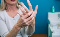Псориатический артрит: симптомы и лечение