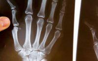 Все, что вы должны знать о ревматоидном артрите